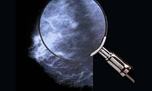 Оправдана ли регулярная маммография?